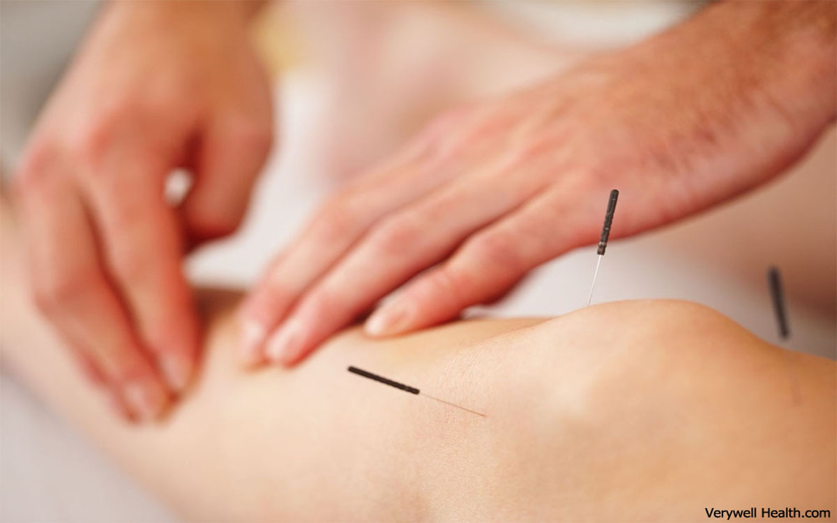 Uses of Acupuncture - The origin of acupuncture in China