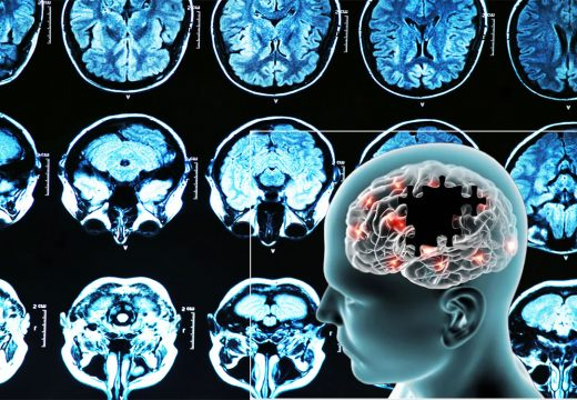 Alzheimer's Illness – Receiving Health Insurance coverage in Place Is often a Bonus in Fighting the Disease