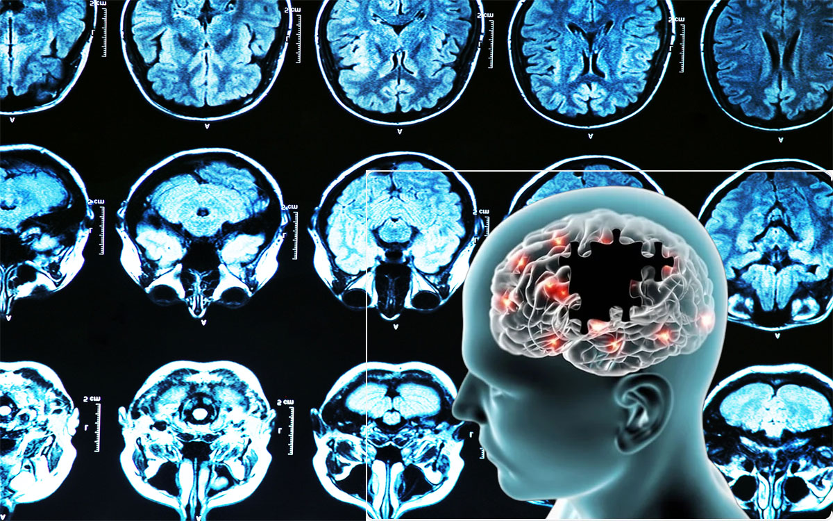 Alzheimer's Illness - Receiving Health Insurance coverage in Place Is often a Bonus in Fighting the Disease